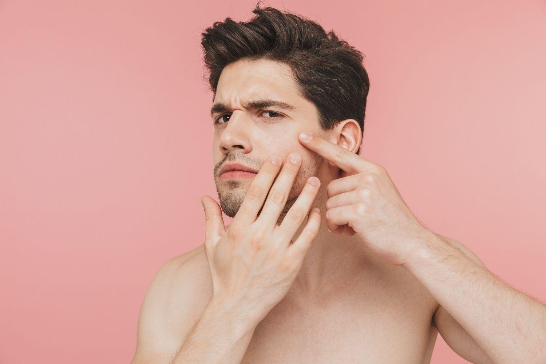combat adult acne